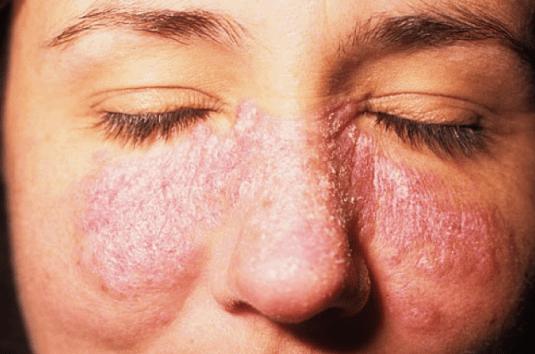 Lupus ban đỏ gây ra hiện tượng rụng tóc nhiều