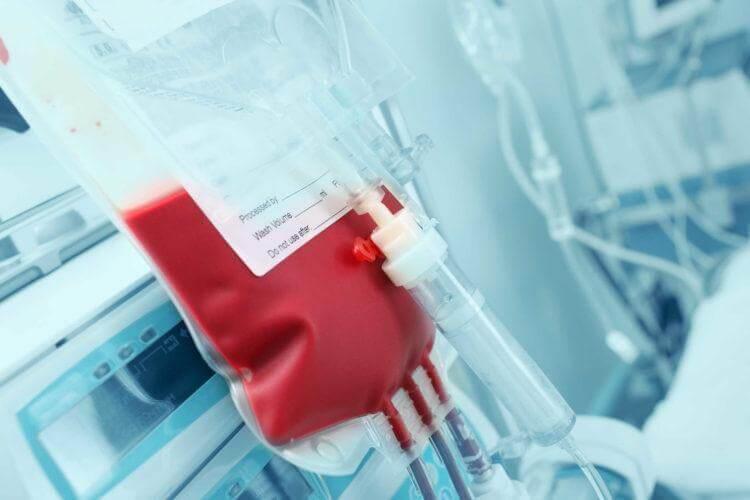Nguy cơ mắc bệnh viêm gan B từ điều trị lọc máu