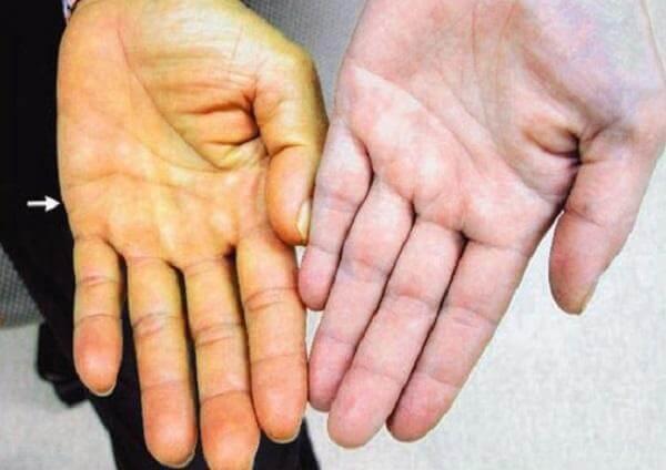 Da của người viêm gan B thường vàng hơn so với bình thường