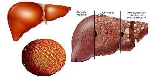Tìm hiểu về bệnh viêm gan B