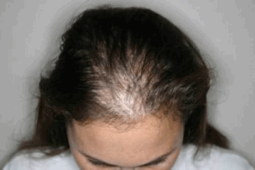 Dấu hiệu để nhận biết rụng tóc từng mảng ở trẻ em