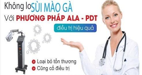 Điều trị sùi mào gà bằng phương pháp ALA – PDT