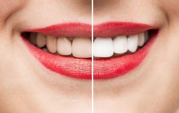 Đến 7 Địa Chỉ Làm Răng Uy Tín Ở Quận Thủ Đức TP HCM Để Có Bộ Răng Đẹp Hoàn Hảo 14